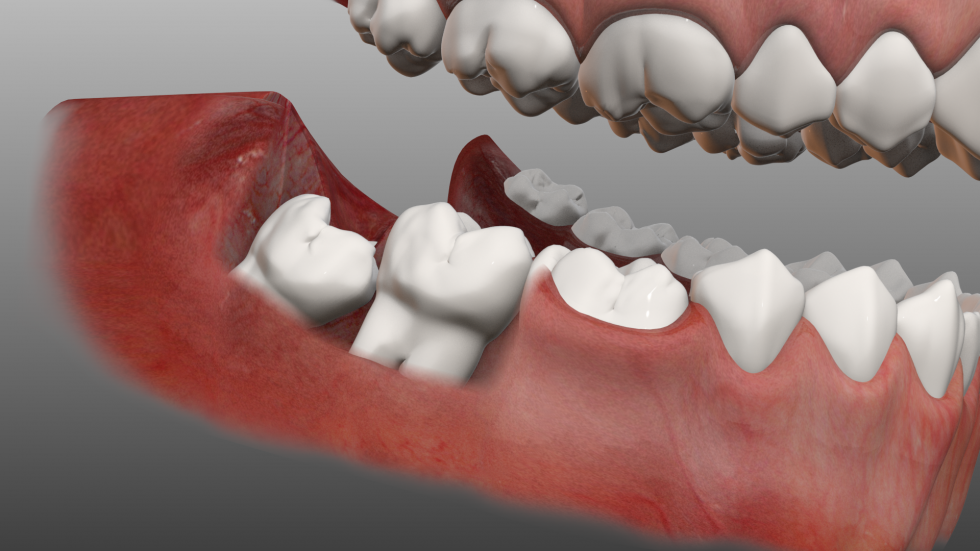 Nhổ răng khôn giá rẻ chất lượng cao tại Vinh