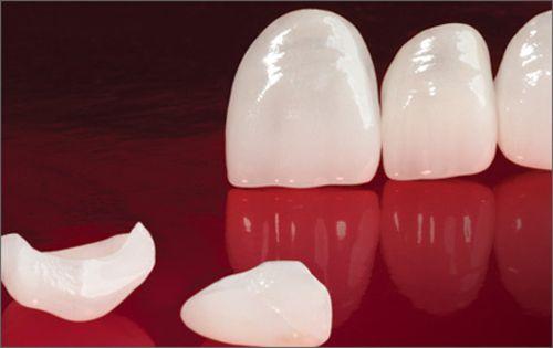 bọc răng sứ giá rẻ, uy tín tại Vinh