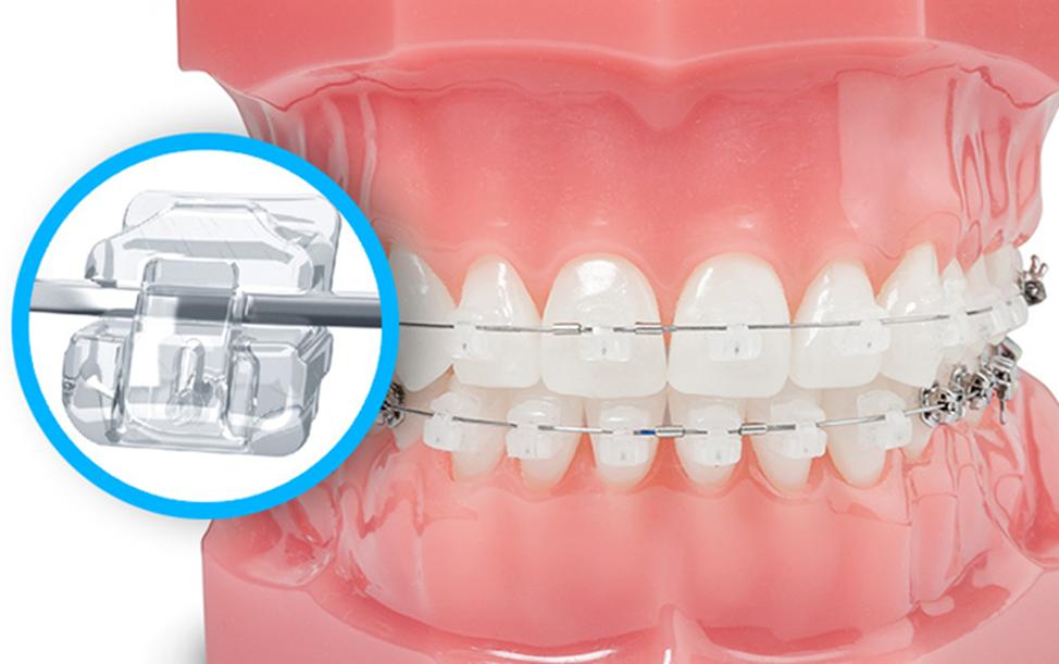 niềng răng chất lượng tại Vinh