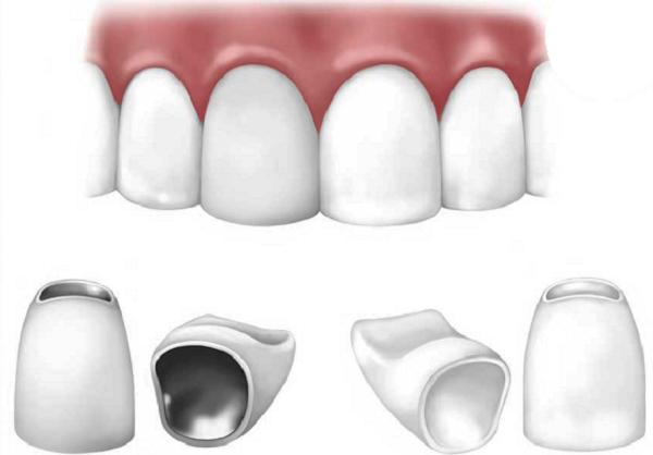 Bọc răng sứ giá rẻ có tốt không?