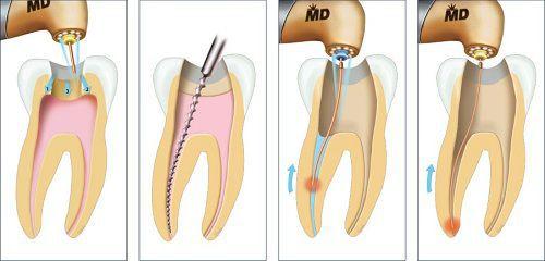lấy tủy răng có đau hay không