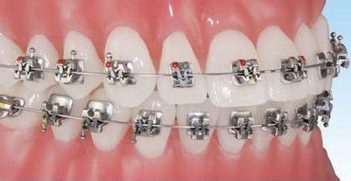 Niềng răng hô uy tín an toàn