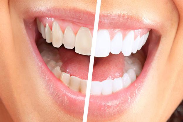 lấy tủy răng có lợi như thế nào
