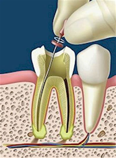 Thời gian điều trị tủy răng mất bao lâu