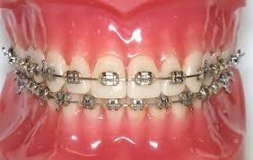 Niềng răng không mắc cài Invisalign hiệu quả như thế nào