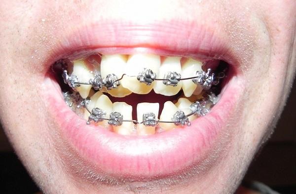 Niềng răng hô nướu có hiệu quả không