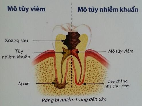 Lợi hại của việc cạo vôi răng