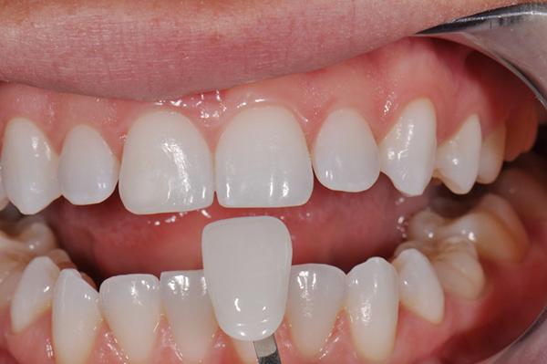 mài răng trong thẩm mỹ răng sứ
