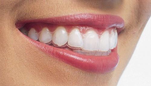 phương pháp niềng răng tháo lắp
