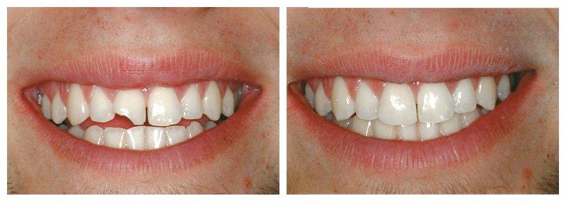 Bọc răng sứ mang lại những lợi ích gì