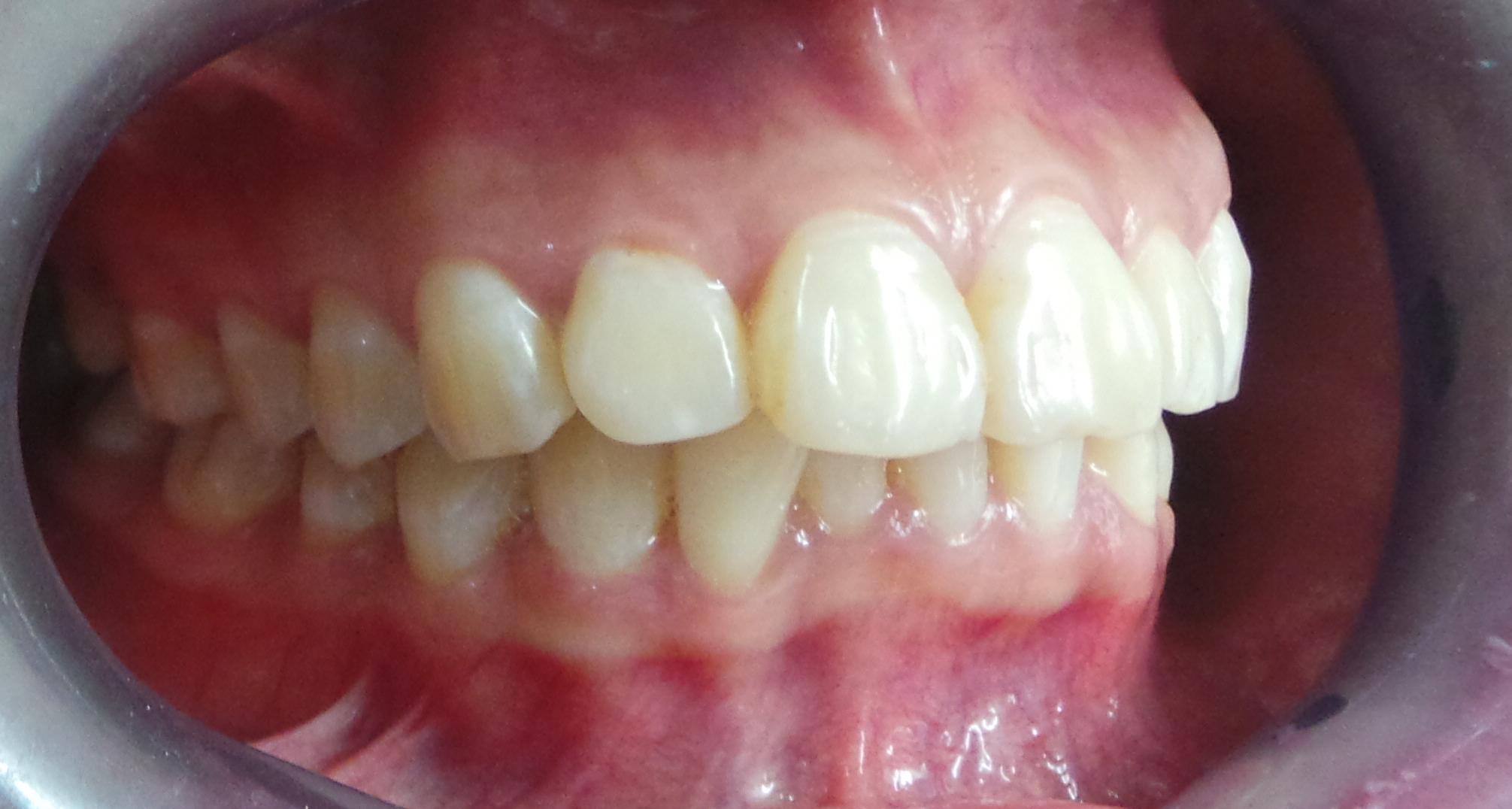 cách chữa sâu răng hiệu quả tại nhà