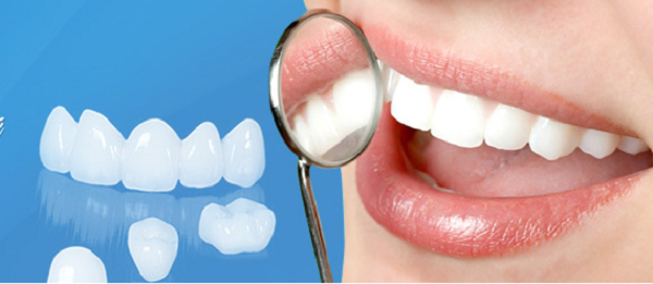 Răng sứ NANO 6D – Thế hệ răng sứ của tương lai