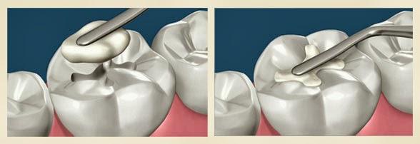 Răng sâu có nên trám răng không