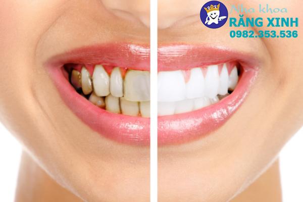 bọc răng sứ tại vinh