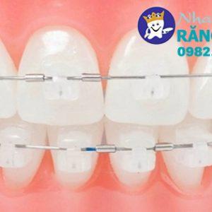 Địa chỉ niềng răng pha lê tại Vinh uy tín - 0982.353.536
