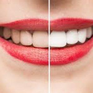 Tẩy trắng răng chậm tại Vinh