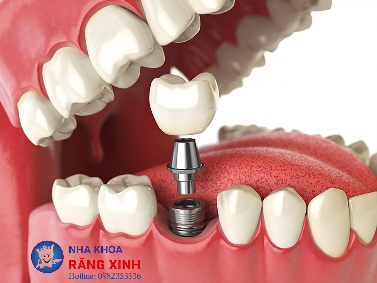 Cấy Implant tại Vinh an toàn uy tín