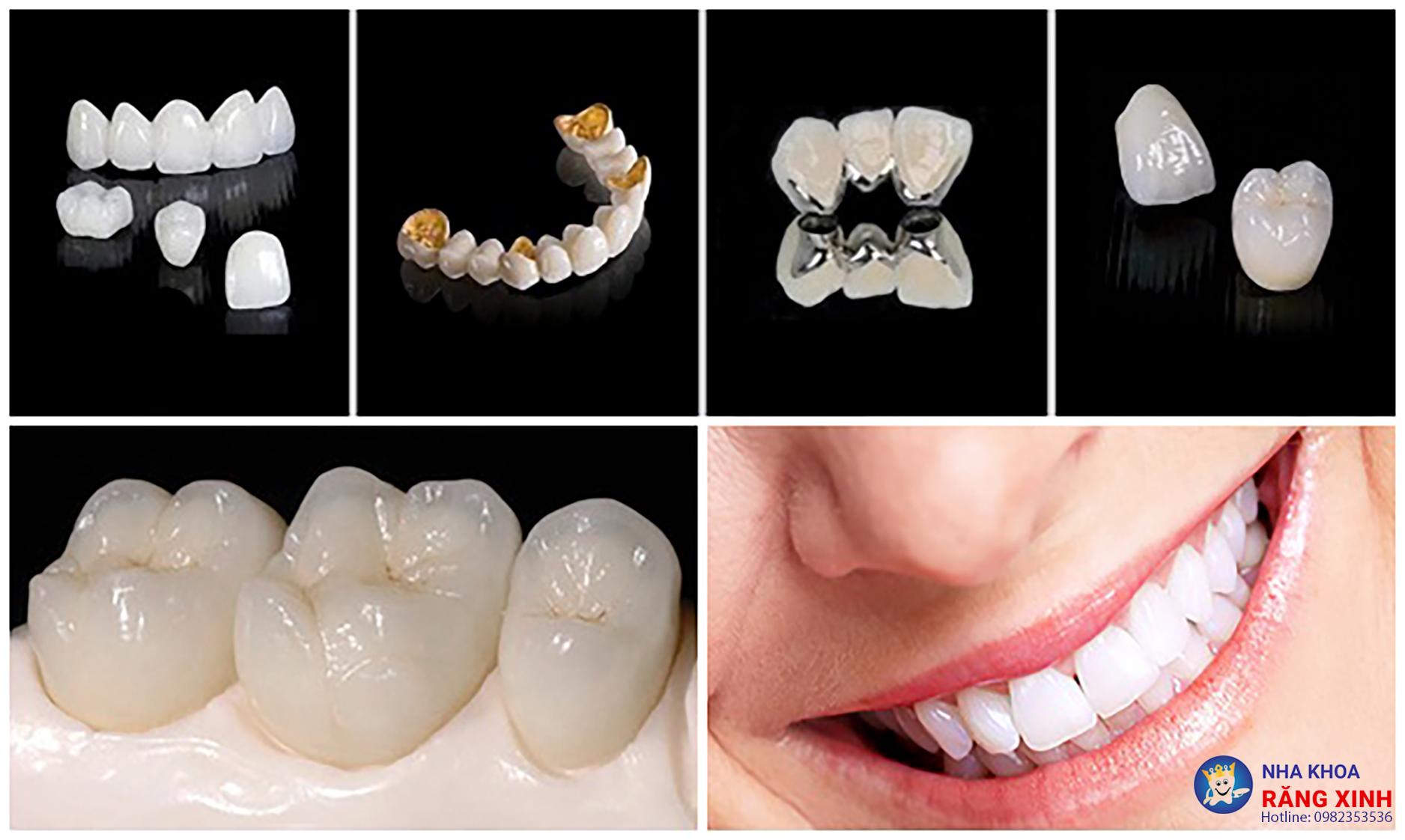 Tìm hiểu địa chỉ bọc răng sứ tốt tại Vinh