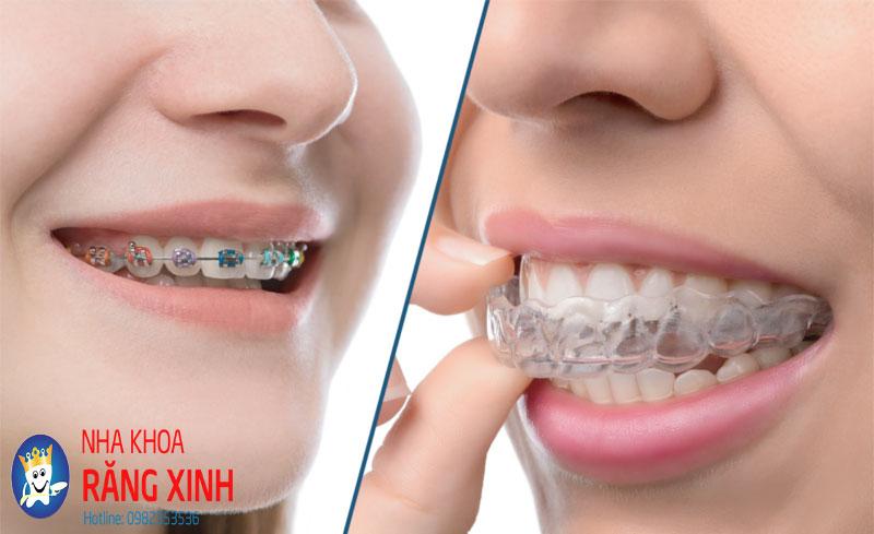 niềng răng một hàm