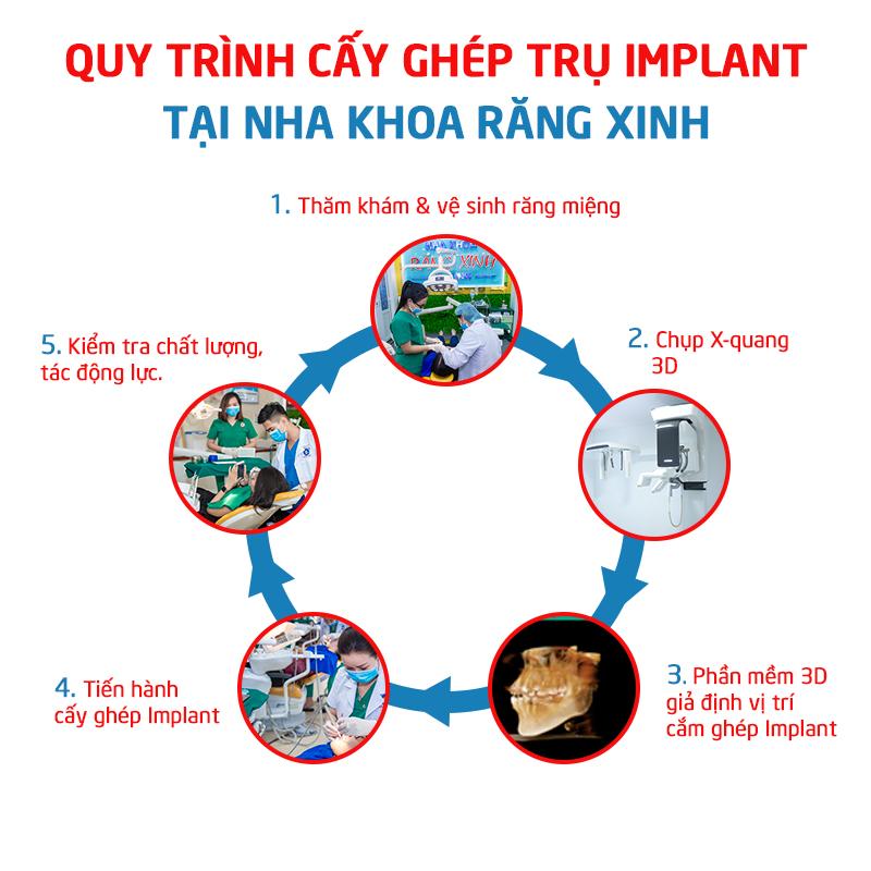 cấy trụ implant