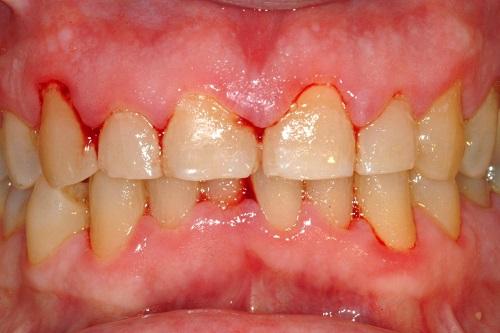 răng bị đen