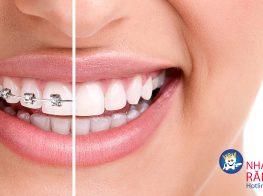 braces-aesthetics-37tc944k2k0lrqr8plmosg.jpg