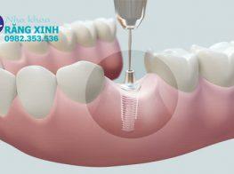 cac-van-de-thuong-gap-sau-cay-ghep-implant-360mtpjzs7v5z8v1ns69z4.jpg