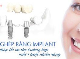 cay-ghep-implant-an-toan-tai-nha-khoa-Viet-uc-39n47yjo44o9wpnr62crgg.jpg
