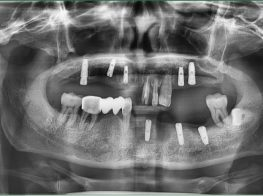 cay_ghep_implant-38kpnjdqdgipu0va435c74.jpg