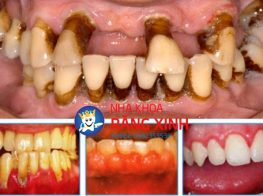 cay_implant_uy_tin-38o9pn3mu6dirbb5656fb4.jpg