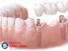 nen-trong-rang-su-hay-cay-ghep-implant-khi-bi-mat-rang-38o12dkmja4xky480ed3b4.jpg