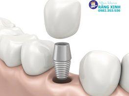trong-rang-implant-bao-lau-thi-binh-phuc-35y1r6nd08a2x8dlkai7eo.jpg