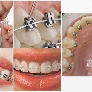 Nha khoa Nghệ An niềng răng thẩm mỹ uy tín
