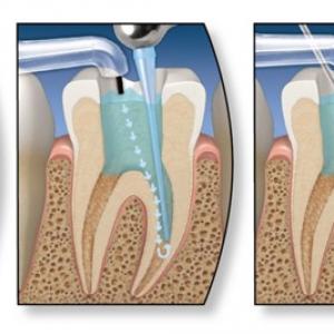 Nha Khoa Nghệ An lấy tủy răng tại Vinh an toàn không đau