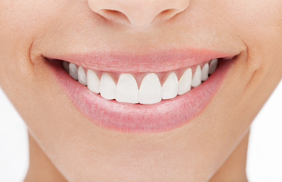 bọc răng sứ nguyên hàm uy tín