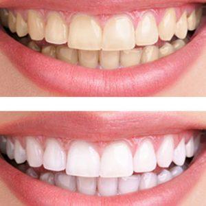 Những điều cần biết khi tẩy trắng răng