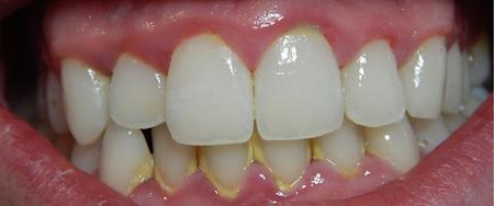 lấy cao răng bằng sóng siêu âm