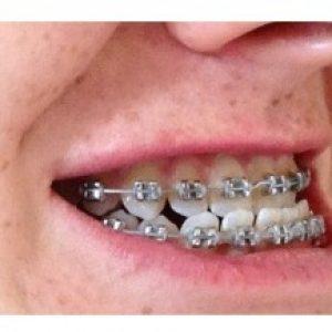 niềng răng mõm không cần phẫu thuật