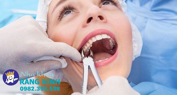 nhổ răng khôn tại Vinh