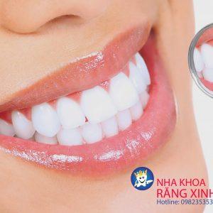 Nha khoa Răng Xinh