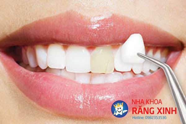dán răng sứ