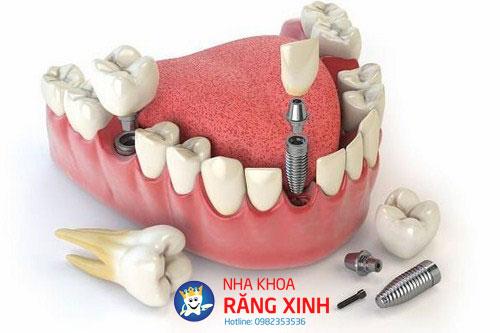 nên trồng răng sứ hay cấy ghép implant