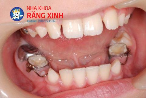 mất răng hàm
