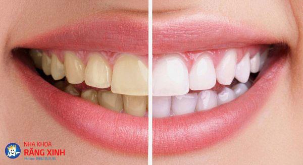 tẩy trắng răng chậm