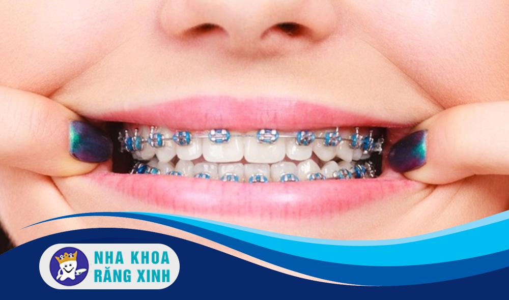 Độ tuổi lý tưởng để niềng răng là bao nhiêu?