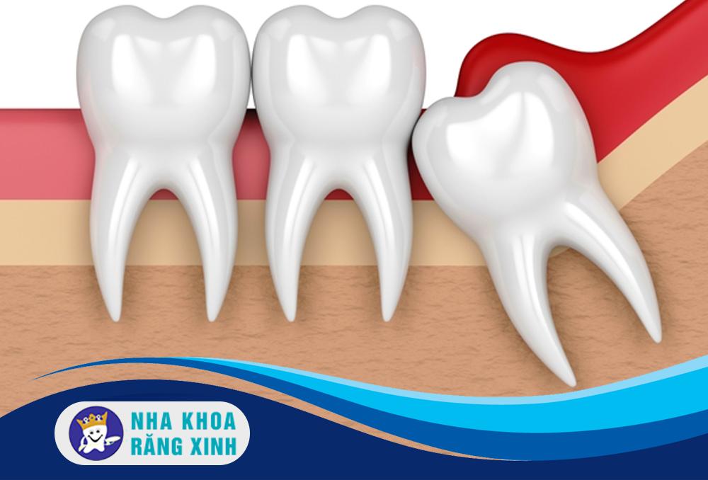 nhổ răng khôn mọc ngang có đau không