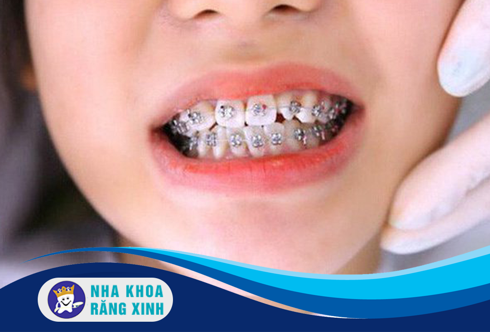 niềng răng cho trẻ