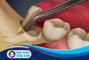 nhổ răng khôn bị sót chân răng có nguy hiểm không