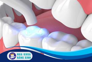 trước khi trám răng bạn cần làm gì