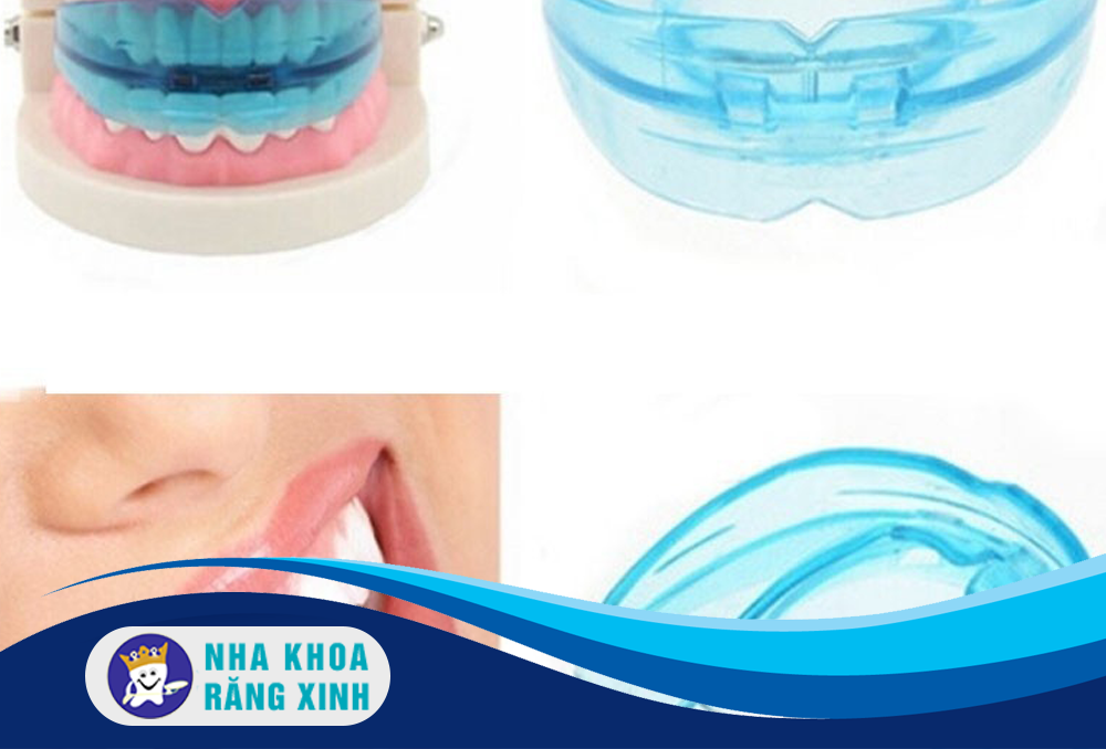 niềng răng silicon là gì